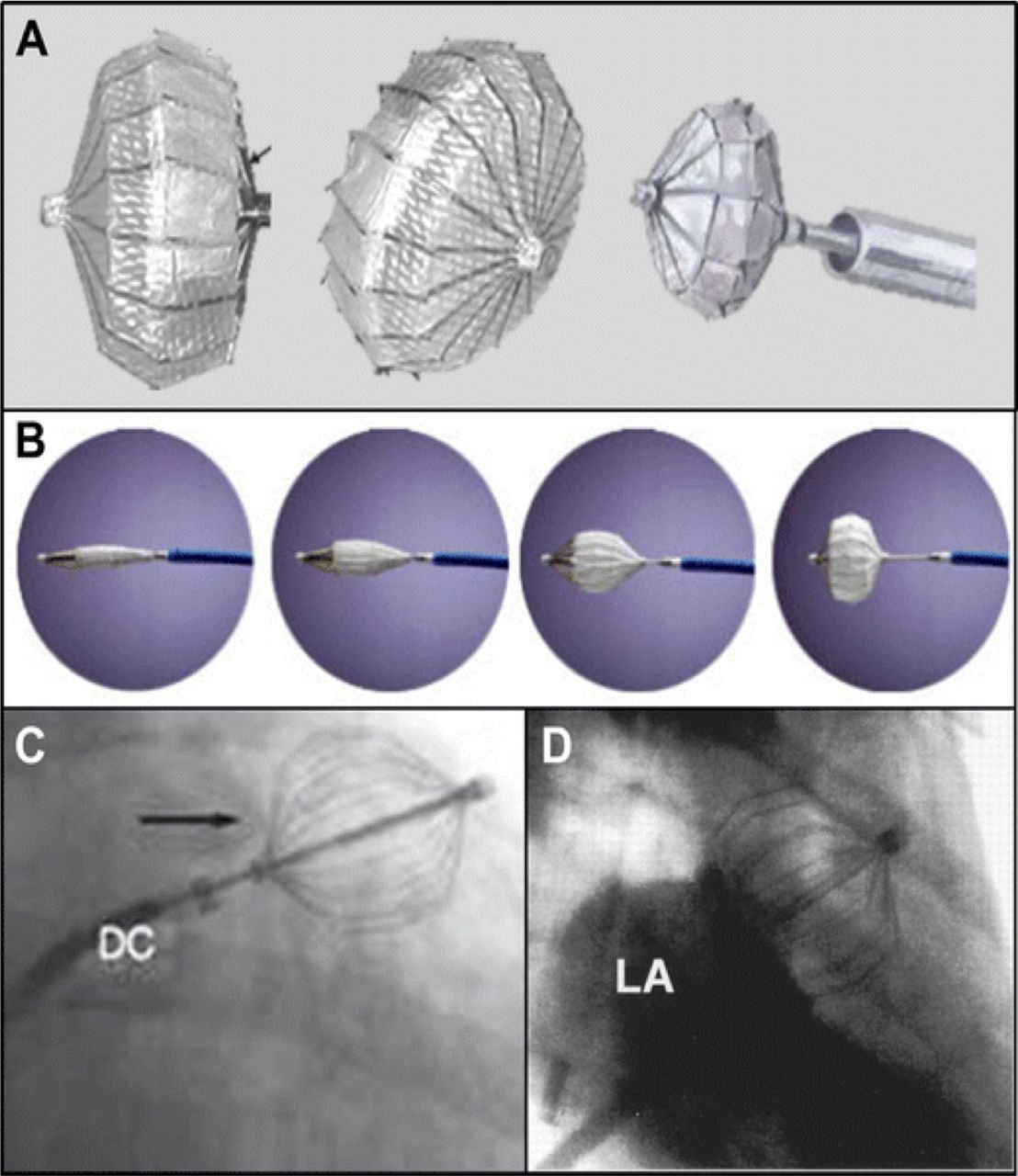 percutaneous left atrial appendage occlusion for stroke prevention