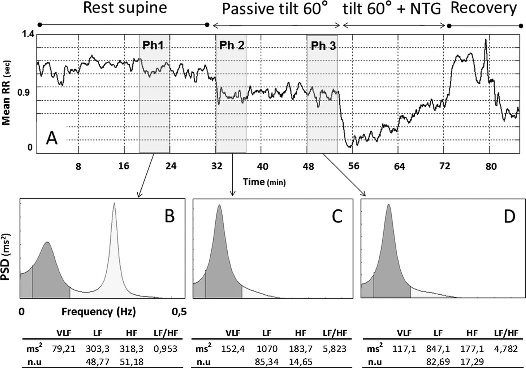 Heart rate variability analysis during head-up tilt test