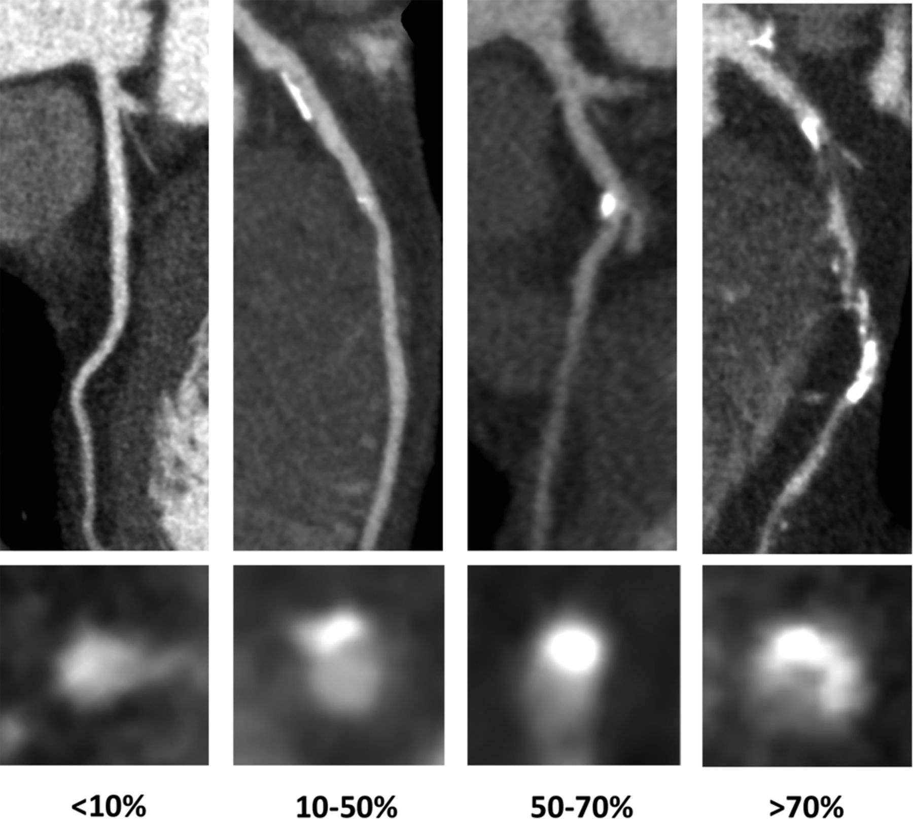 Observer Variability In The Assessment Of Ct Coronary Angiography
