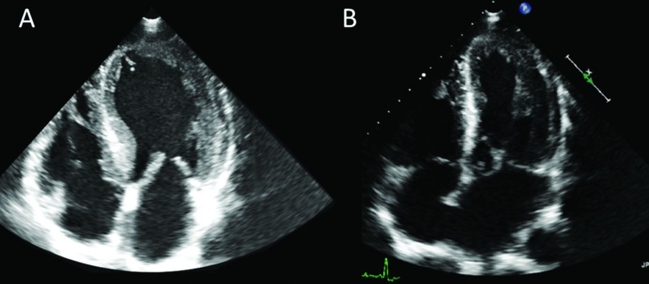 Enhancing The Diagnosis Of Fabry Disease In Cardiology