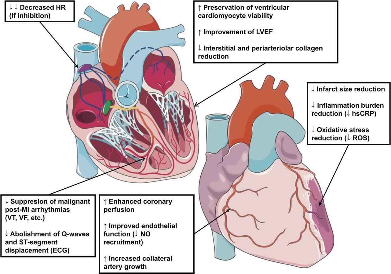 angina symptoms