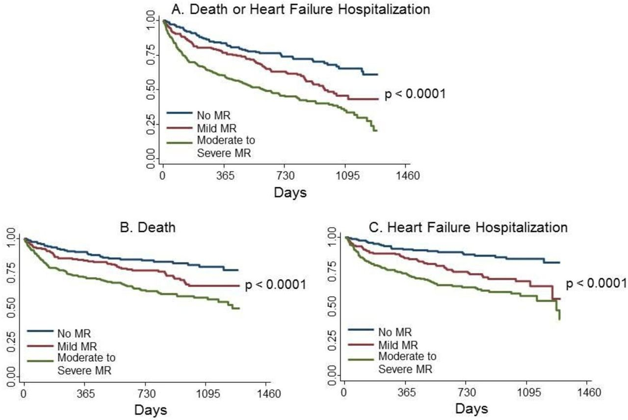 Prognosis of patients with secondary mitral regurgitation and