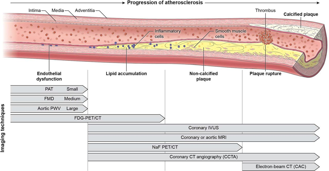 Applying The Ordinal Model Of Atherosclerosis To Imaging Science  A Brief Review